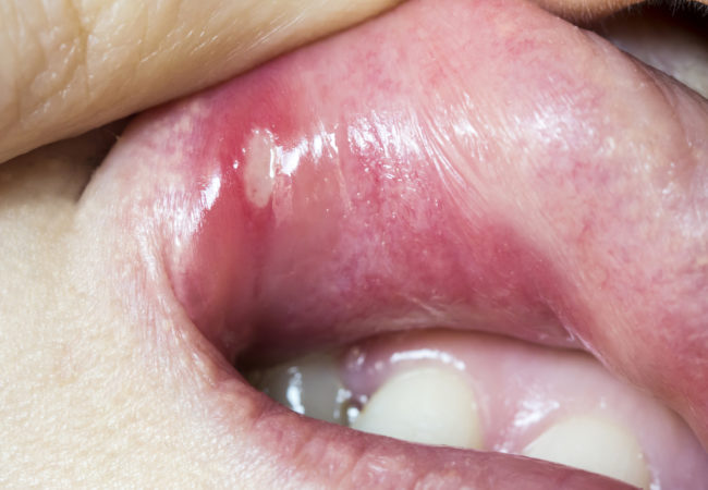 hpv symptoms on mouth)