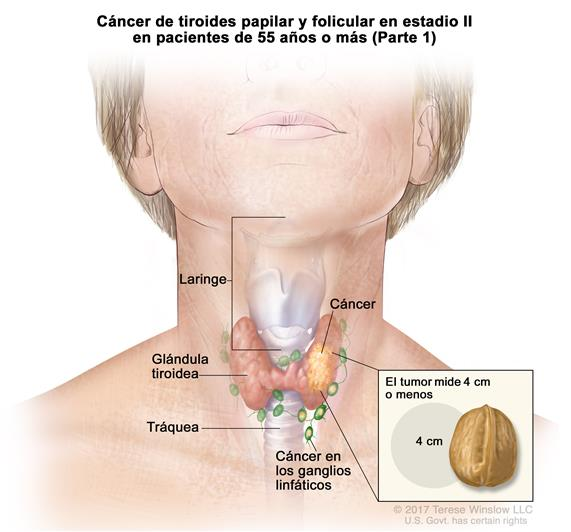 cancer de tiroide folicular)
