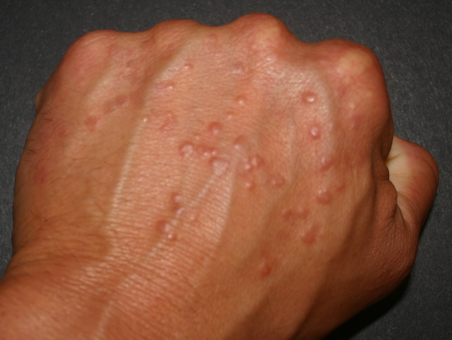 warts on hands not itchy