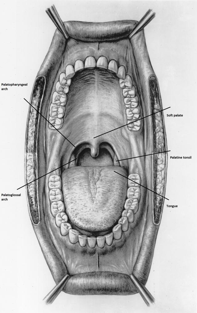 papilloma arcus palatopharyngeus)