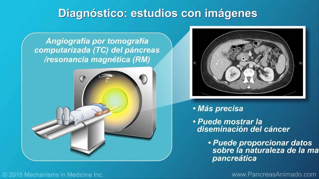 cancer de pancreas diagnostico