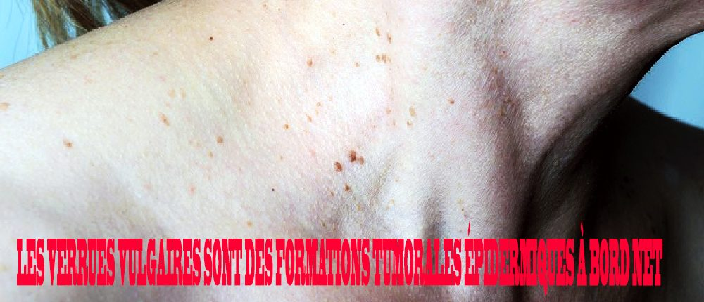 papillomavirus contagieux homme