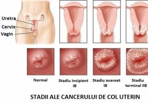 cancer de col uterin)
