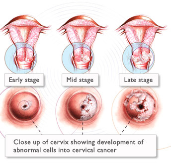 Infezioni genitali: vaginiti, cerviciti, annessiti. Ostetricia e Ginecologia on line