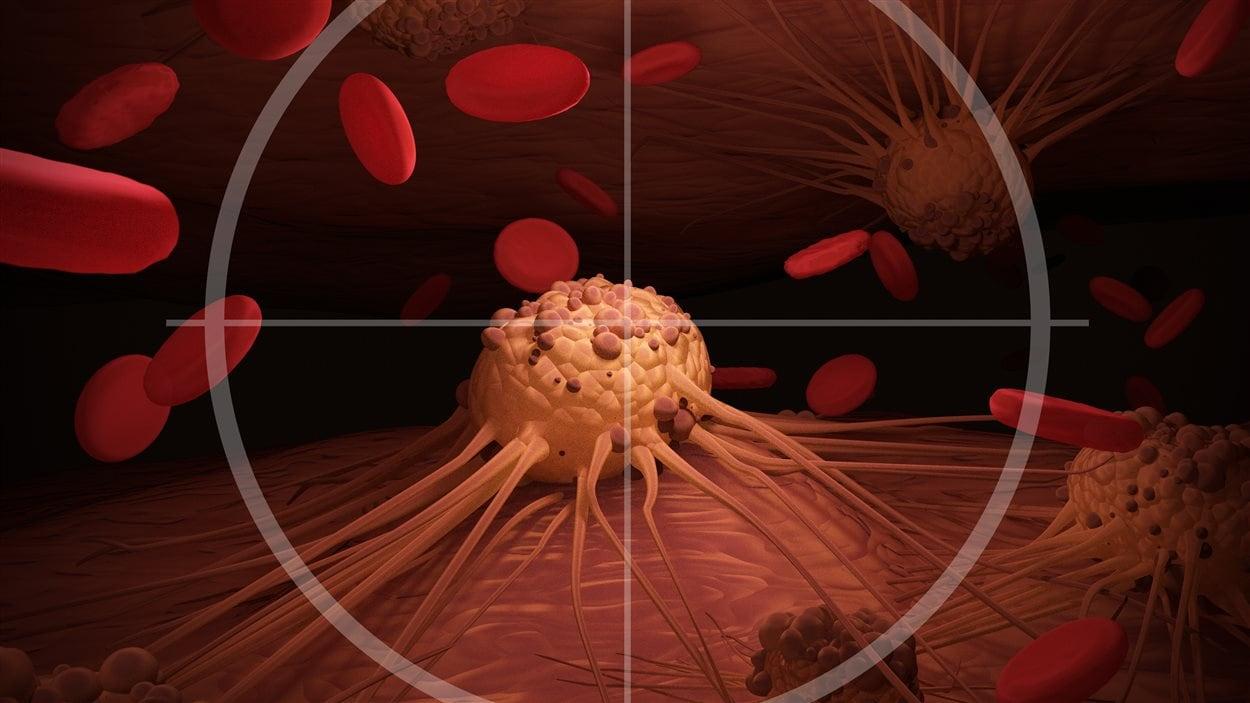 cancer colon foie metastase