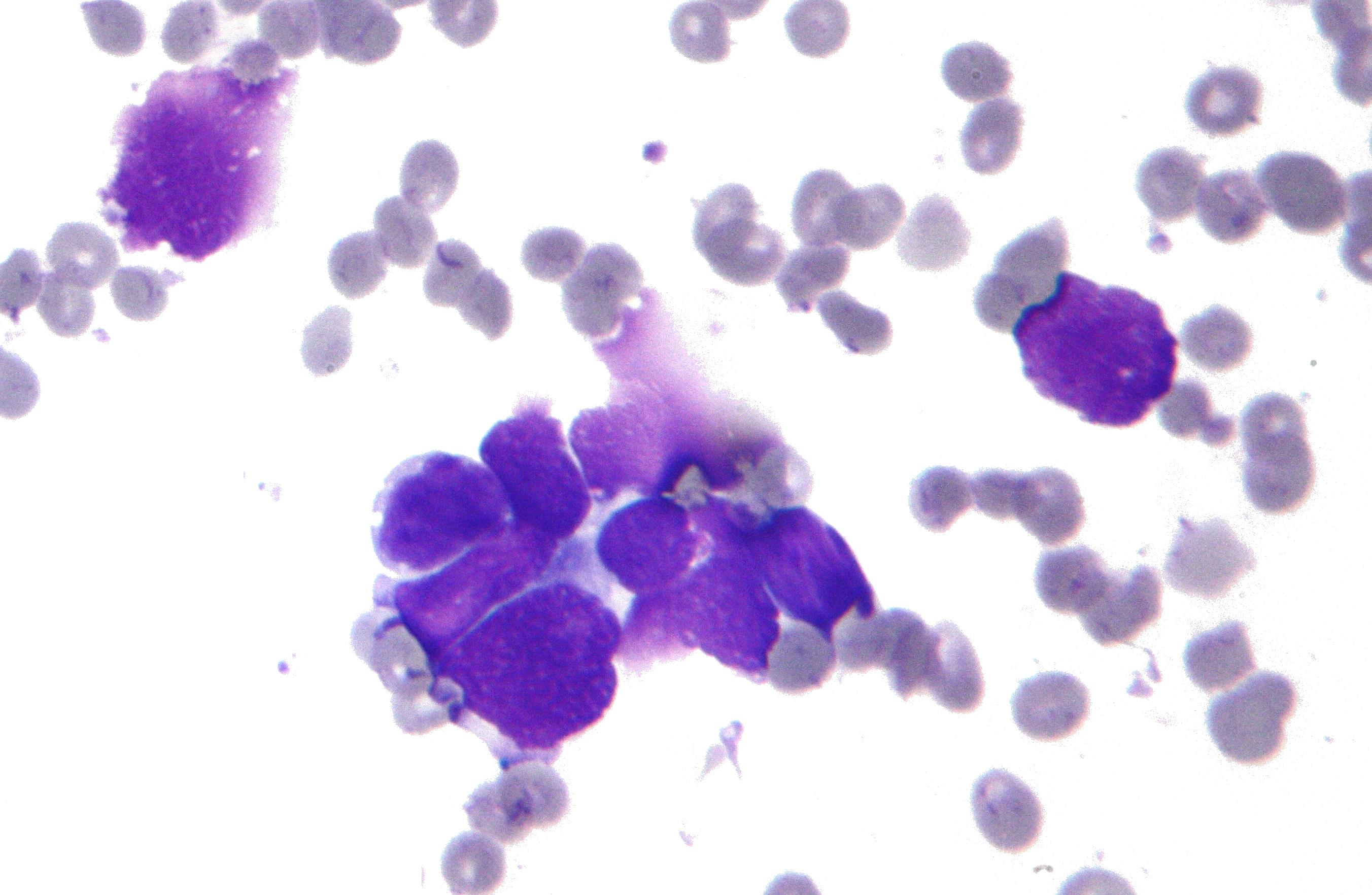cancer neuroendocrine a petite cellule