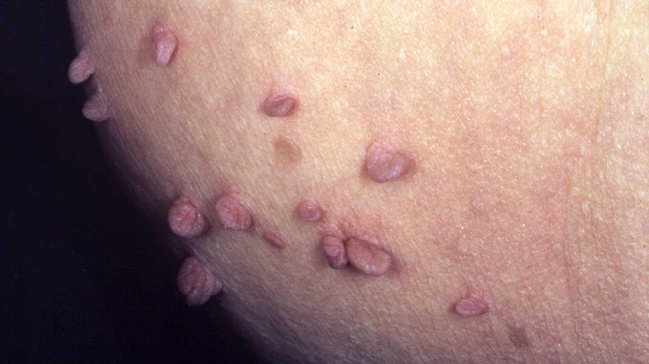 human papillomavirus infection skin tags papillomavirus+conisation+recidive