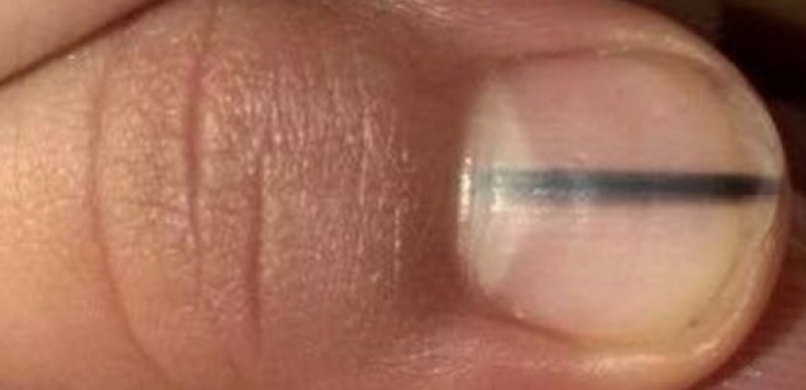 cancer de unghie)