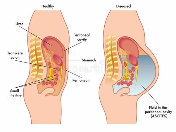 hpv virus clear genital warts hpv erkeklerde tedavisi