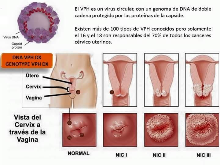 virus papiloma maligno)