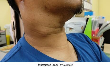 cancer cervical lymph node)