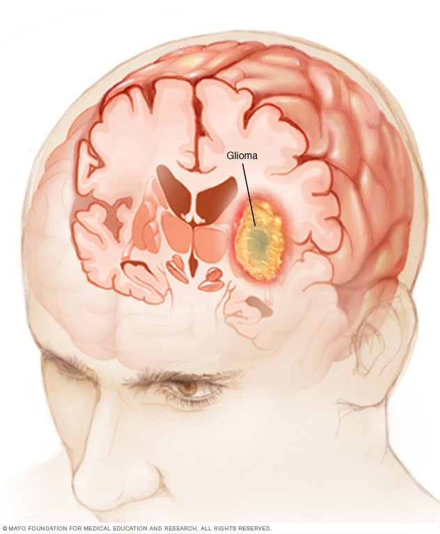 cancer cerebral frontal