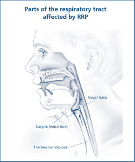 respiratory papillomatosis diagnosis)