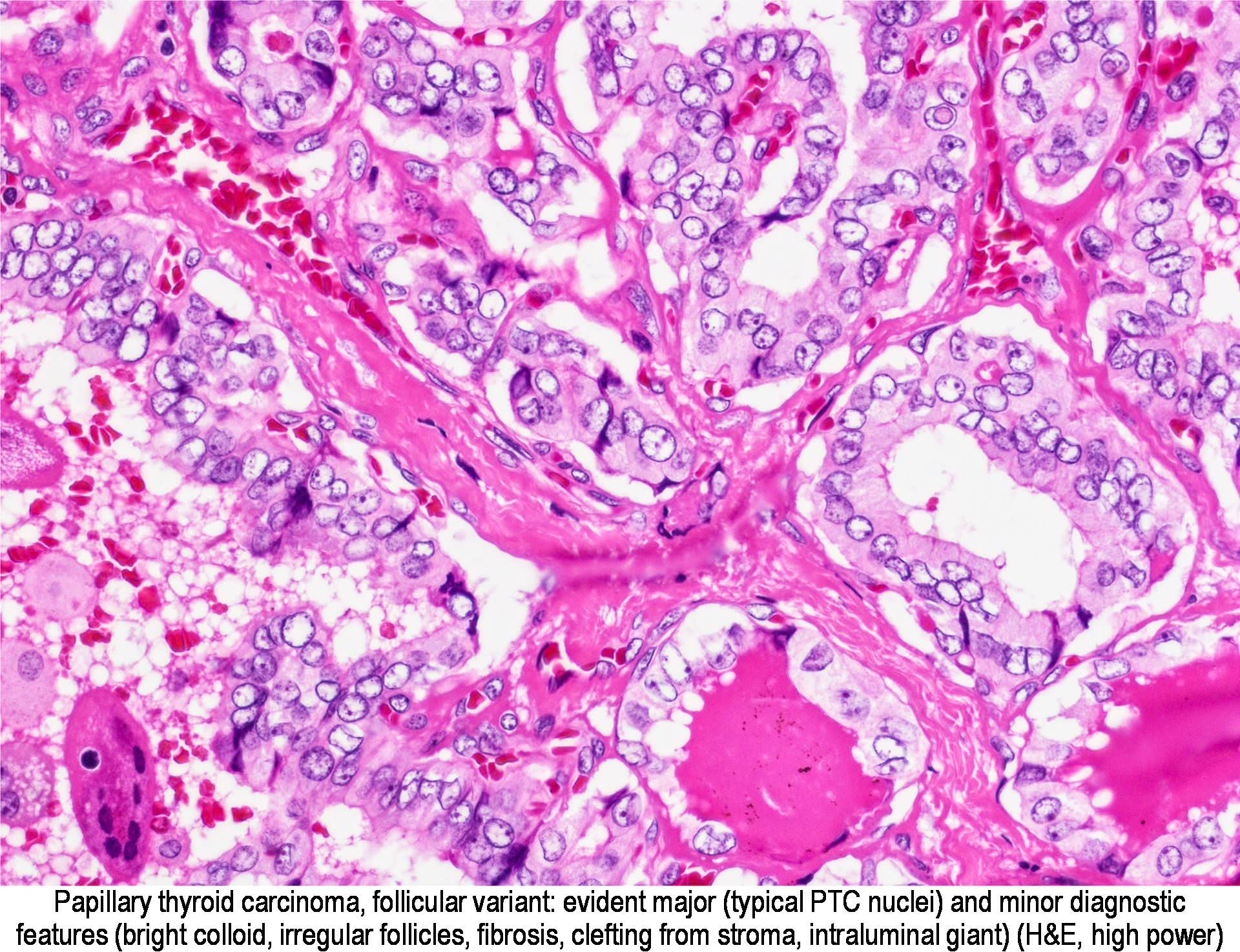 papillary thyroid carcinoma pathology outline