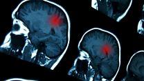 cancer cerebral como funciona papiloma krema za bradavice