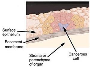 benign cancer precancerous