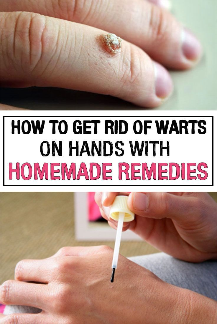 warts on hands treatment at home)