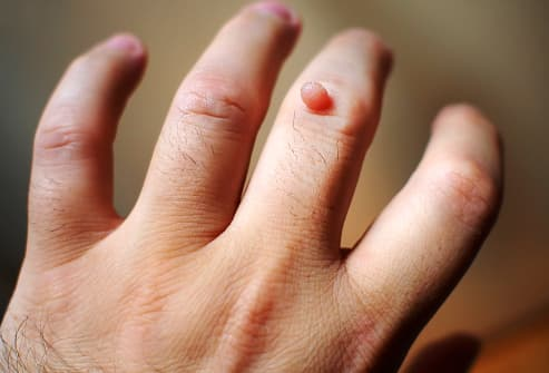 warts on hands early pregnancy