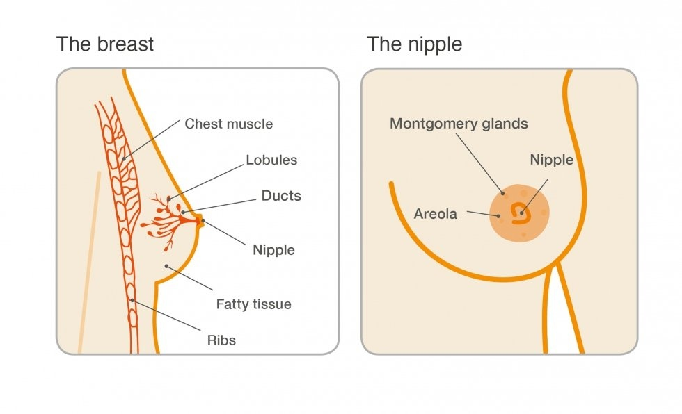 papilloma wart in breast)