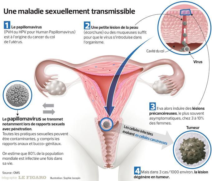 hpv cancer femme sclerosing papilloma
