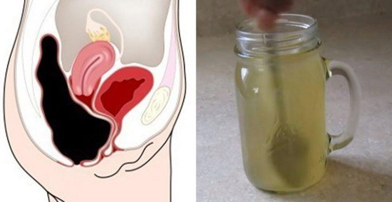 toxine colon