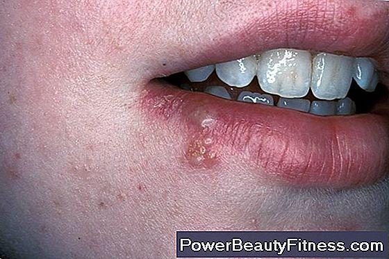 papilloma virus nella gola