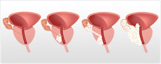 cancer de prostata nivel 5 do papillomas grow back