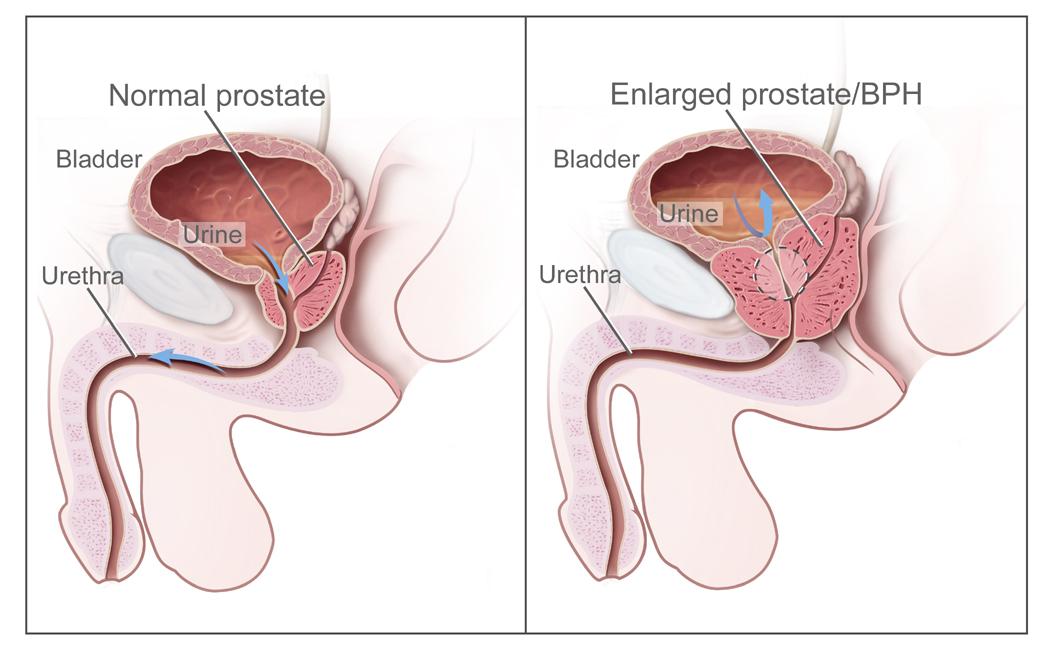 Adenomul de prostată – cauze și complicații - Cancer