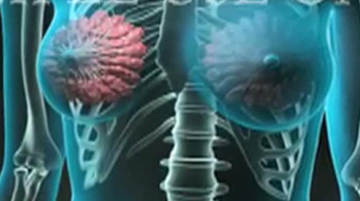 «Cancerul mamar întinerește vertiginos». Interviu NM cu un medic oncolog-mamolog