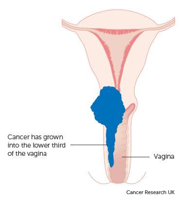 que es cancer fase 3