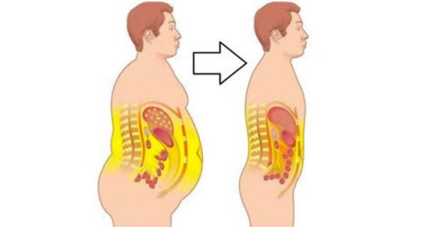 neuroendocrine cancer a)