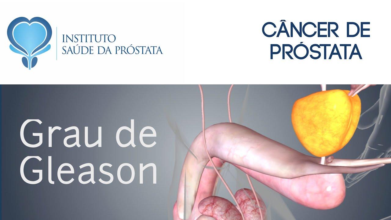 cancer de prostata maligno tem cura)