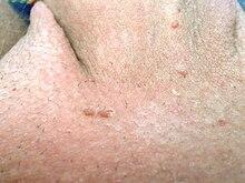 hpv was ist das hpv nasal papillomas