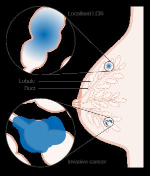 cancer mamar in situ)