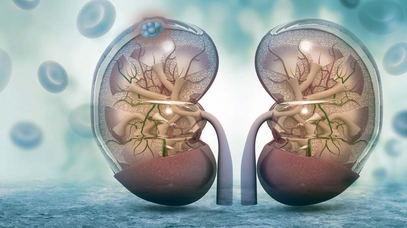 cancer renal causas
