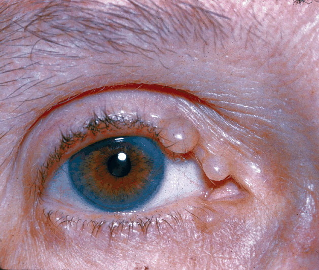 papillomas on lower eyelid