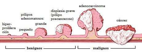 cancer intestinal avanzado)
