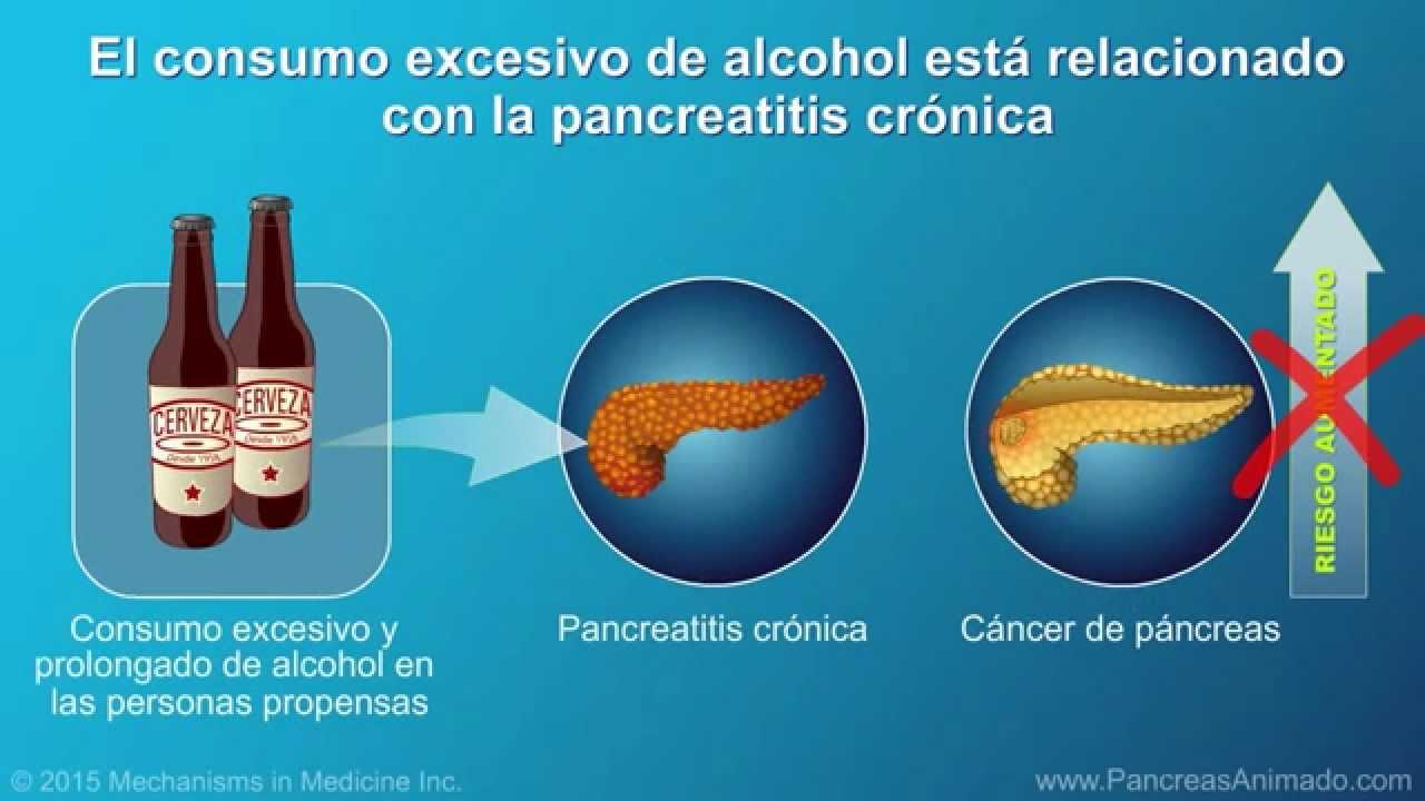 cancer de pancreas que lo causa)