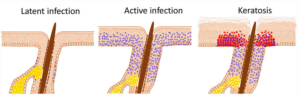human papillomavirus infections and cancer stem cells of tumors from the uterine cervix)