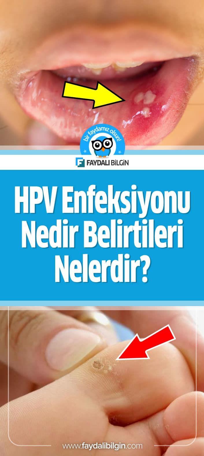 hpv virusunun tedavisi nedir