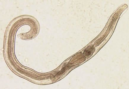 Paraziti intestinali - asspub.ro