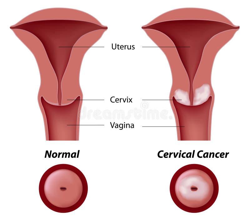 papilloma in utero