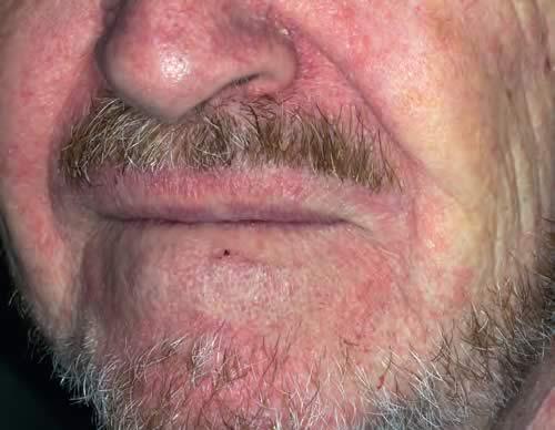 Despre dermatita seboreica - Dr. Corina Pop, Medic Specialist in Dermatologie