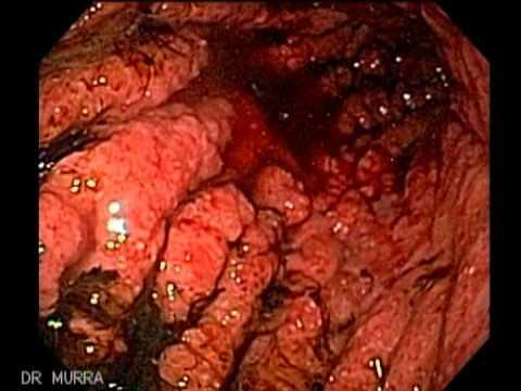 gastric cancer linitis plastica)