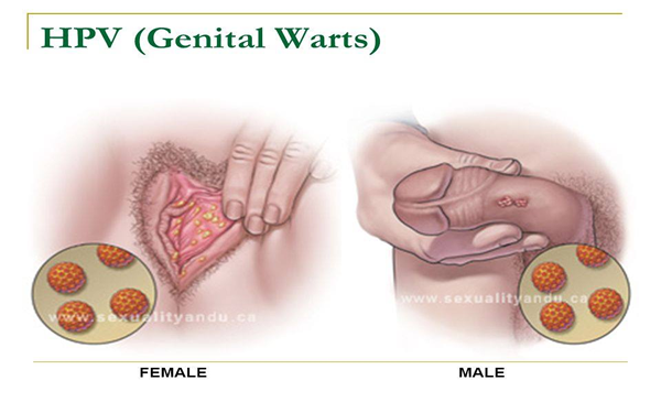 hpv genital warts lead to cancer)