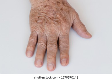 warts on skin in old age
