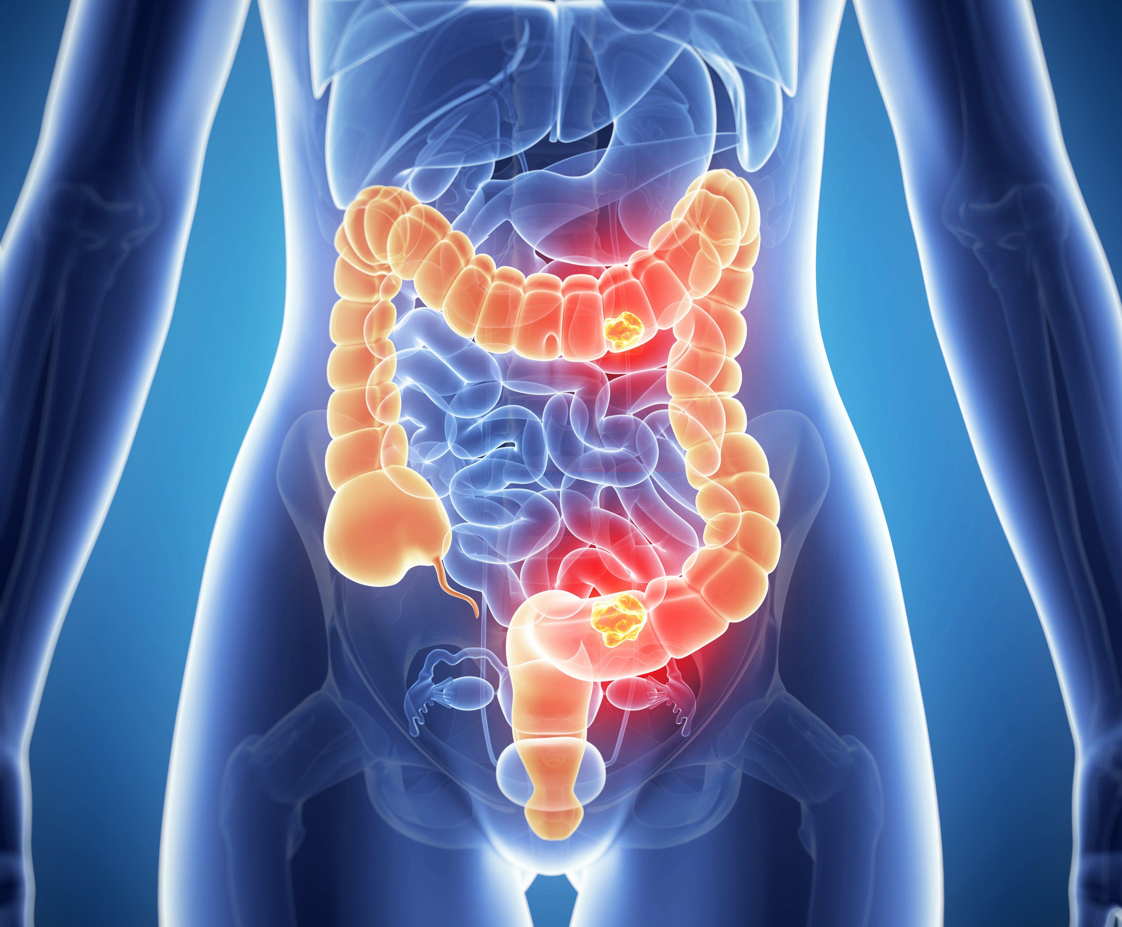 Cauzele şi factorii de risc ai cancerului colorectal