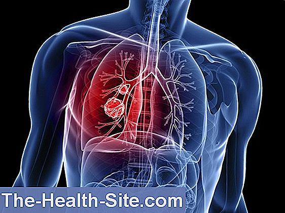 cancerul pulmonar contagios)