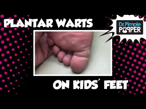 wart on foot child)