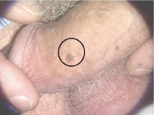 papillomavirus male)
